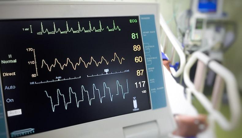 EKG-monitor.jpg